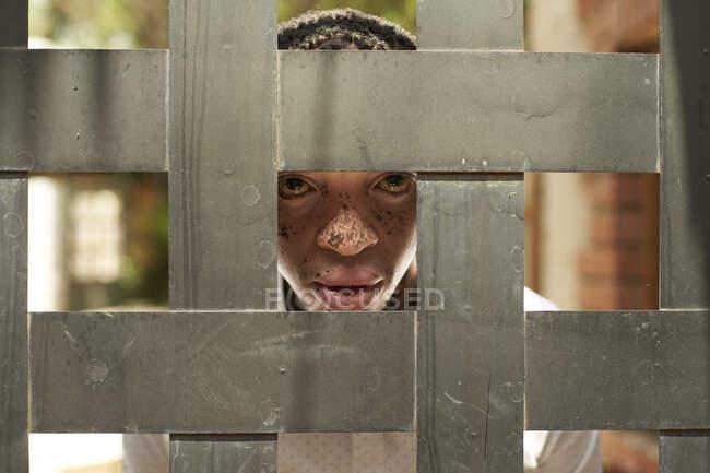 Retrato de un joven con vitiligo detrás de una cerca de madera - foto de stock