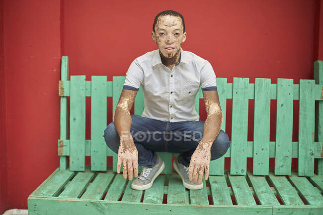 Joven con vitiligo en un banco verde frente a una pared roja - foto de stock