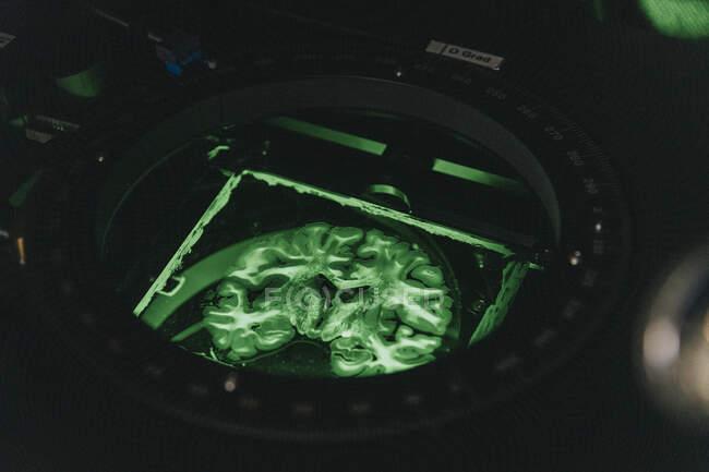 Deslizamiento cerebral humano en microscopio iluminado en laboratorio - foto de stock