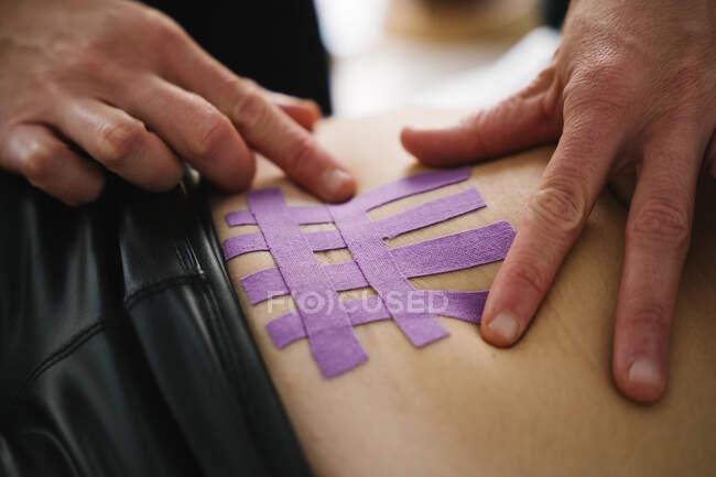 Enfermera aplicando cinta terapéutica elástica púrpura en el abdomen de la mujer - foto de stock
