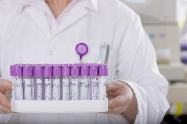 Technician holding vials in laboratory — Stock Photo