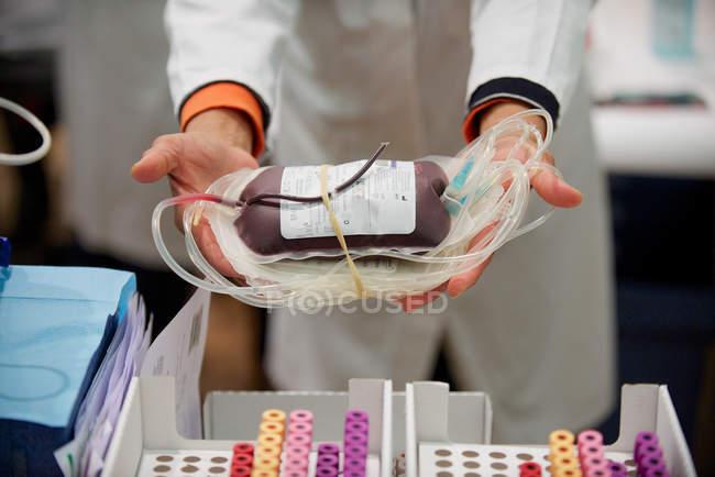 Pessoa, segurando o saco de sangue — Fotografia de Stock