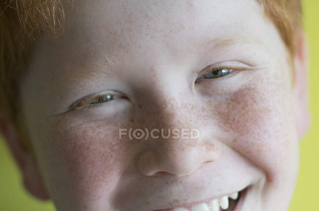 Portrait of cheerfully smiling Boy with freckles — Stock Photo