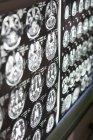 Gehirn-Scans auf Lichtkasten — Stockfoto