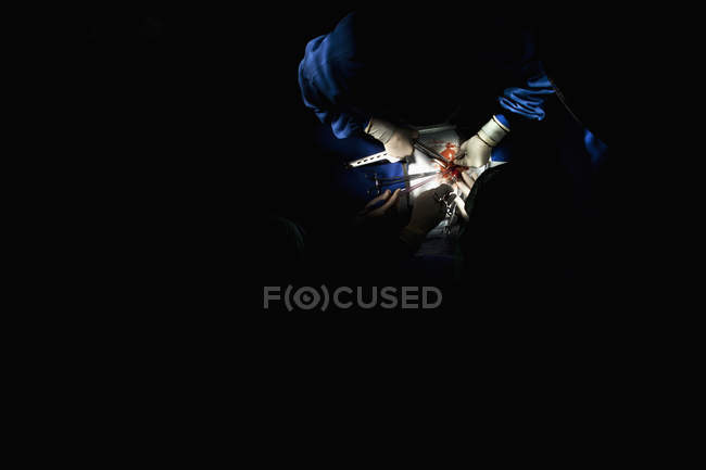 Détail de l'équipe chirurgicale opérant patient à l'hôpital — Photo de stock
