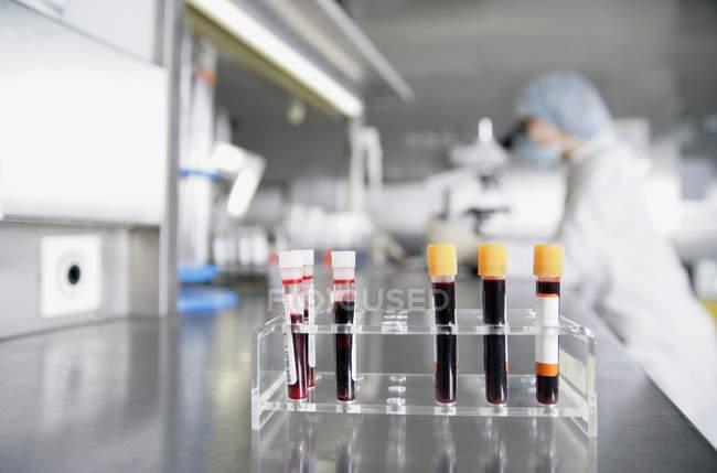 Tubos de ensaio contendo amostras de sangue na mesa de laboratório — Fotografia de Stock