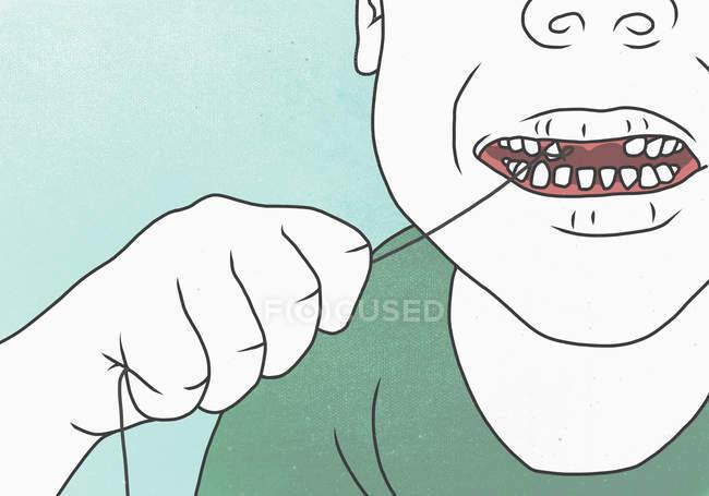 Illustrazione della persona che tira i denti con la stringa — Foto stock