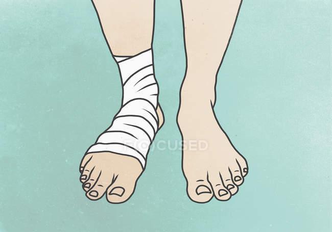 Abbildung des Beines mit Bandage am Fuß — Stockfoto
