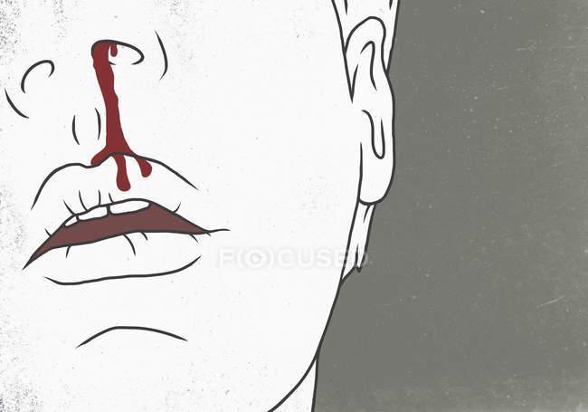 Illustrazione dell'uomo con il naso sanguinante su sfondo grigio — Foto stock
