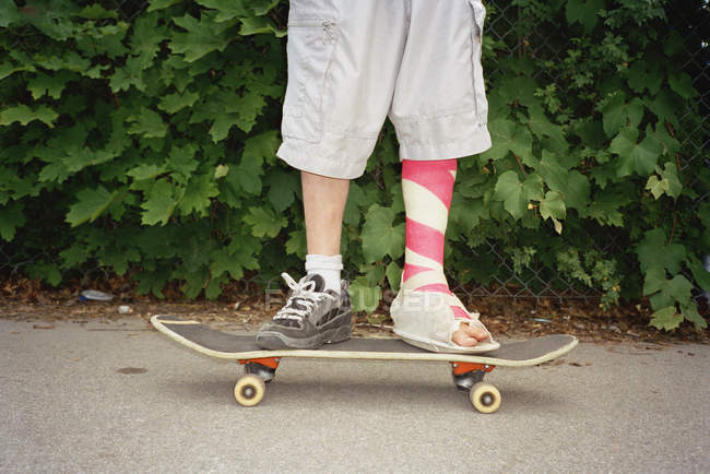 Low section of man with leg in plaster standing on skateboard — Stock Photo