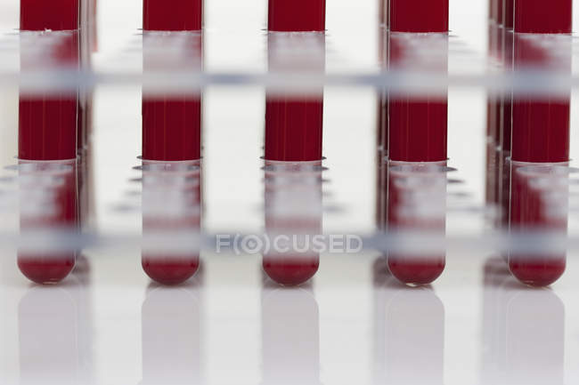 Low angle view of blood samples in test tubes — Stock Photo