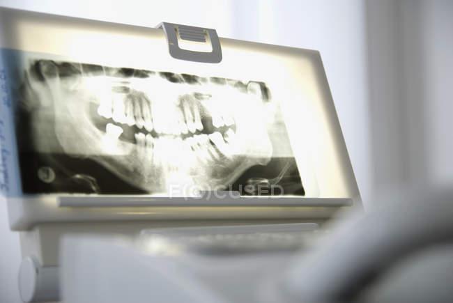 Стоматологическая рентгеновского изображения на Лайтбоксы в офисе стоматолога — стоковое фото