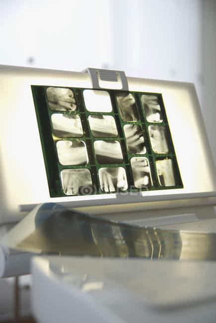 Lightbox with Dental X-ray — Stock Photo