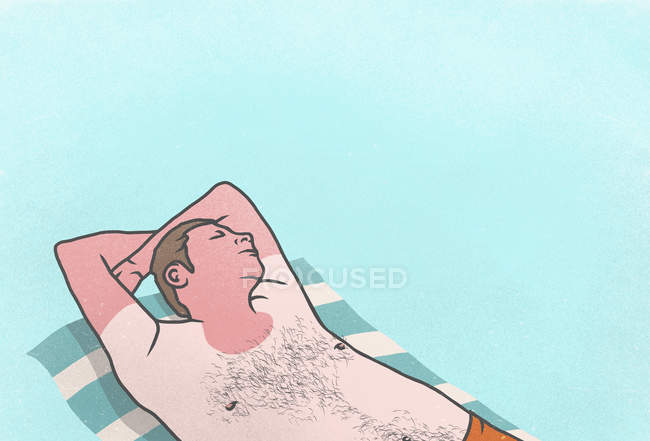 Sunburned man sleeping on towel — Stock Photo
