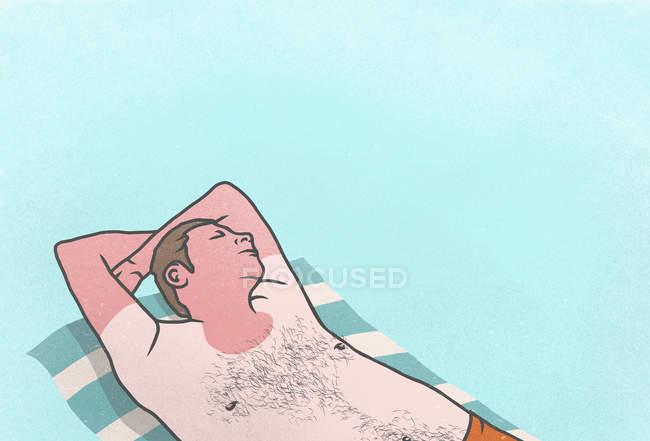 Bruciata dal sole uomo che dorme sul tovagliolo — Foto stock