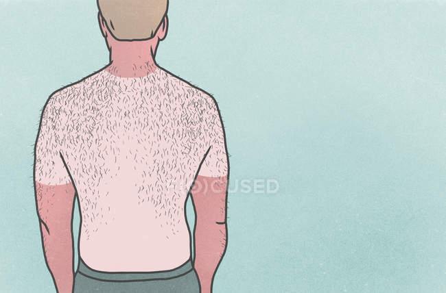 Sunburned man with hairy back on blue background — Stock Photo