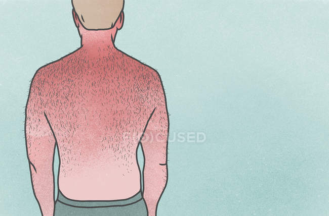 Man with hairy, sunburned back — Stock Photo