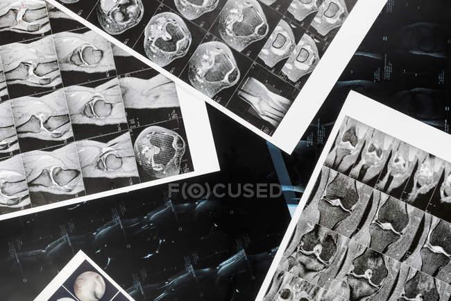 Ver formulario arriba de rayos X - foto de stock