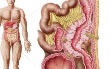 Illustrazione medica di diverticolosi del colon — Foto stock