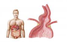 Ilustración médica de una hernia de estómago hiatal en el tórax - foto de stock