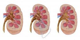 Comparación de cálculos renales de diferentes tamaños en el riñón humano - foto de stock