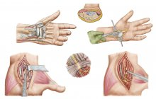 Medical illustration of carpal tunnel syndrome in the human wrist — Stock Photo