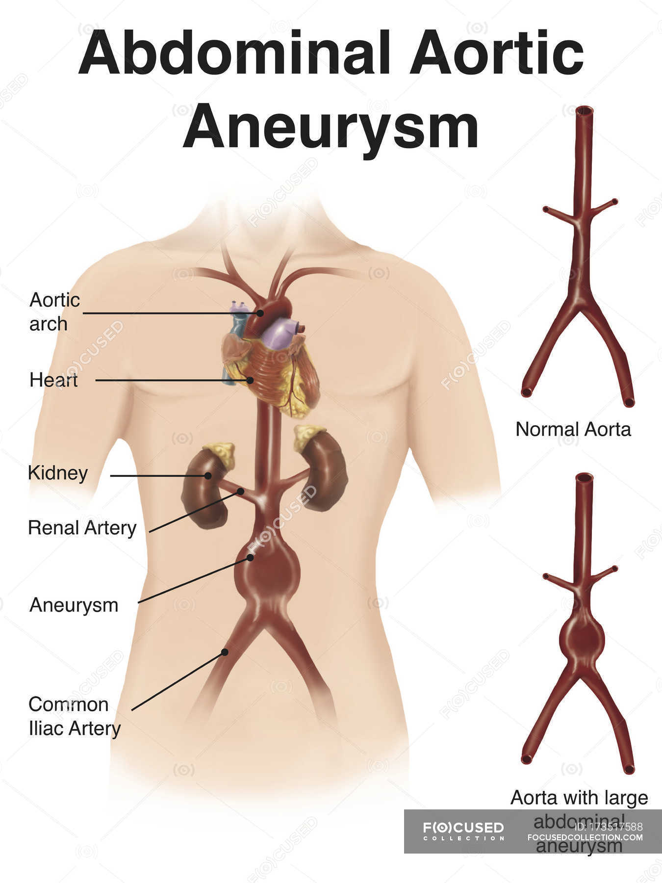 Depiction Of Abdominal Aortic Aneuryism Stock Photo 173517588
