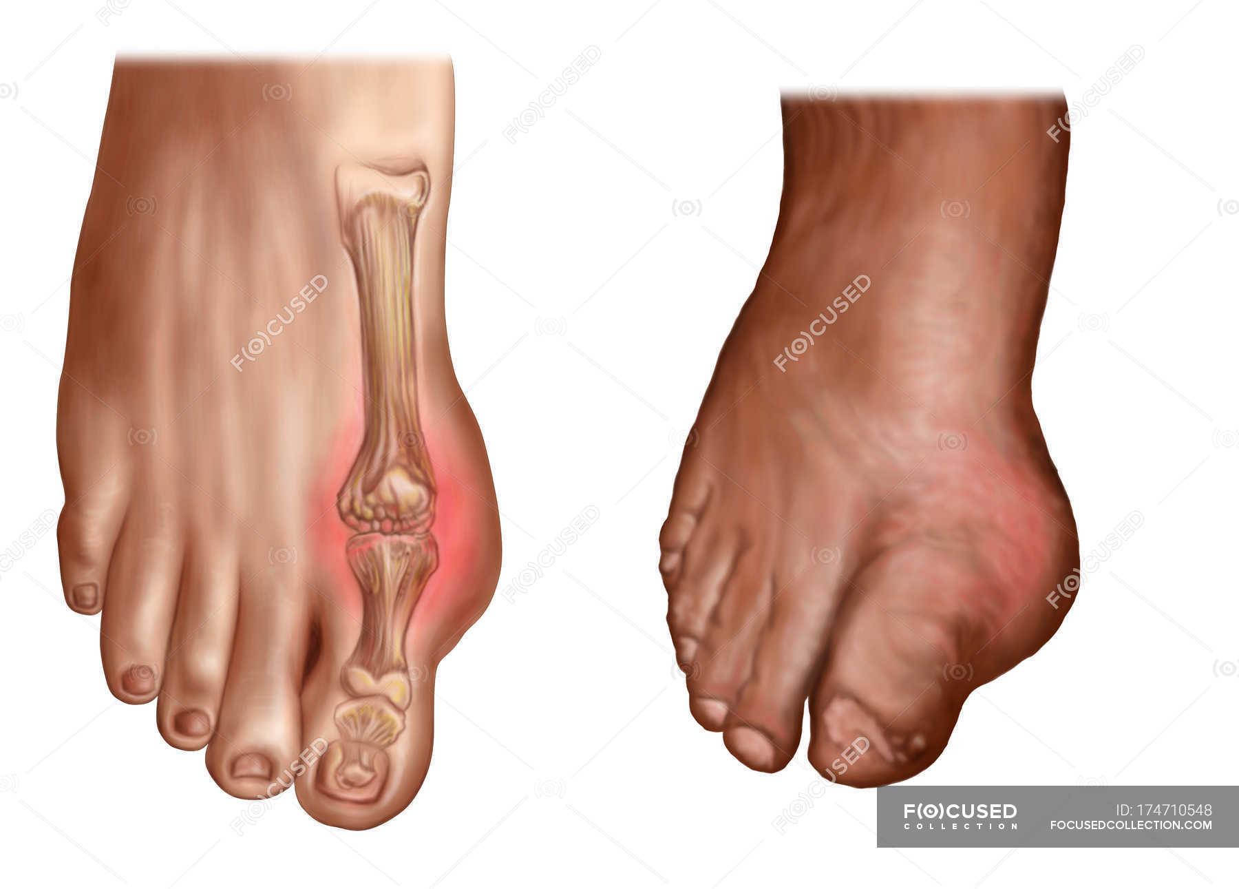 Anatomy of swollen feet on white background — Stock Photo | #174710548