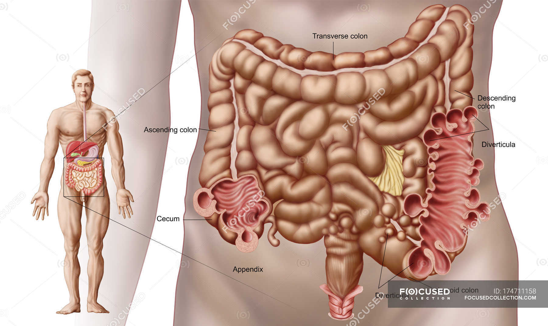 Illustration of diverticulitis in the descending colon of the human ...