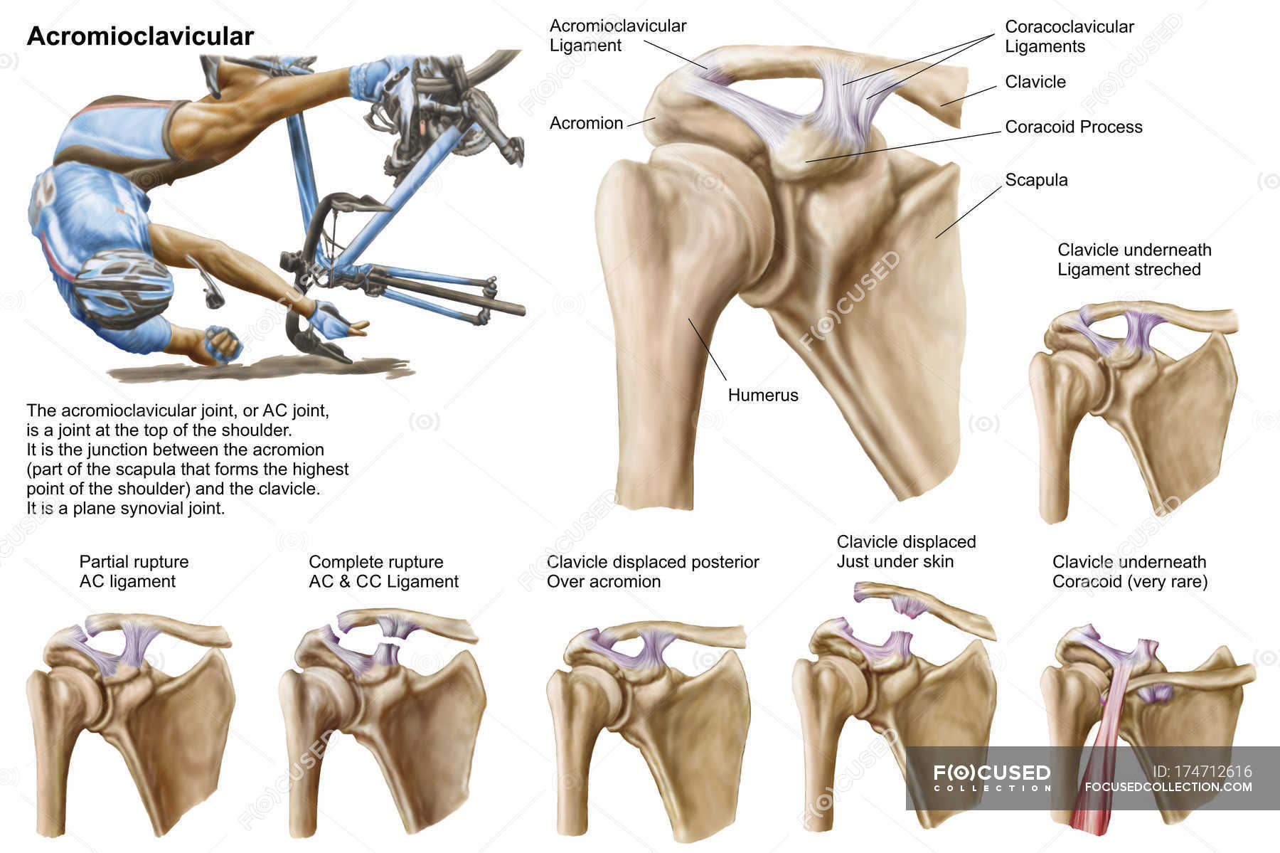 Anatomy of acromioclavicular joint rupture and displacement — Stock ...