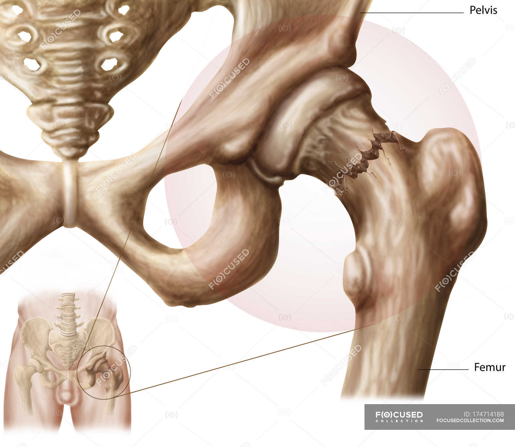 Anatomy of hip fracture medical illustration — Stock Photo | #174714188