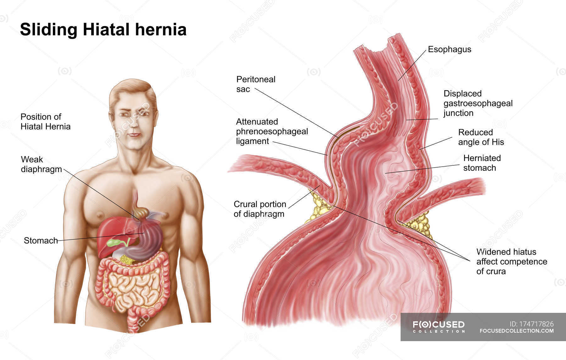 Medical ilustration of a hiatal hernia of stomach into the thorax ...