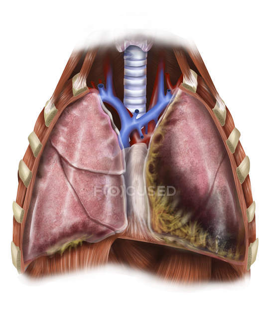 Depiction of mesothelioma in lungs — Stock Photo