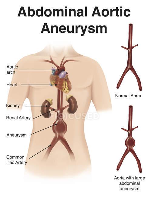 Representación del aneurisma aórtico abdominal - foto de stock