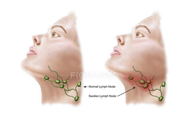 Анатомія опухлі лімфатичні вузли — стокове фото