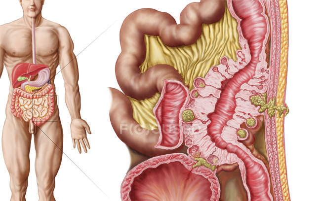Ilustración médica de la diverticulosis en el colon - foto de stock