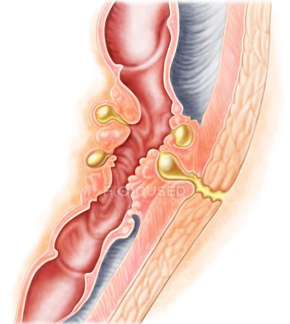 Ilustración médica del desarrollo de la fístula - foto de stock