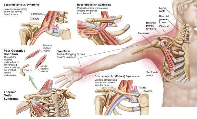 Ilustração médica detalhando síndrome da saída torácica — Fotografia de Stock