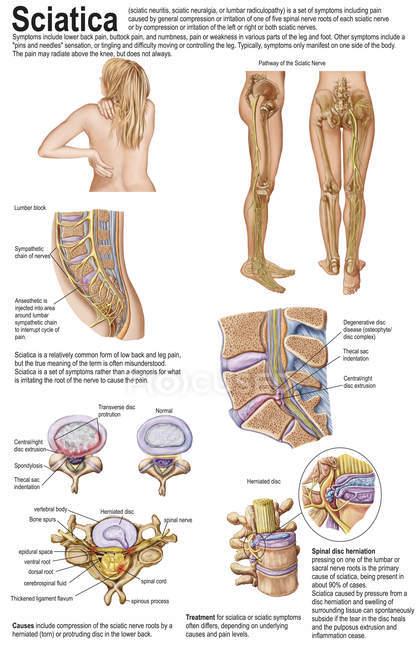 Ärztliches Diagramm mit den Anzeichen und Symptomen von Ischias — Stockfoto