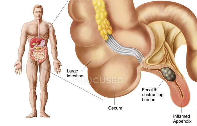 Ilustración médica de un apéndice con apendicitis - foto de stock
