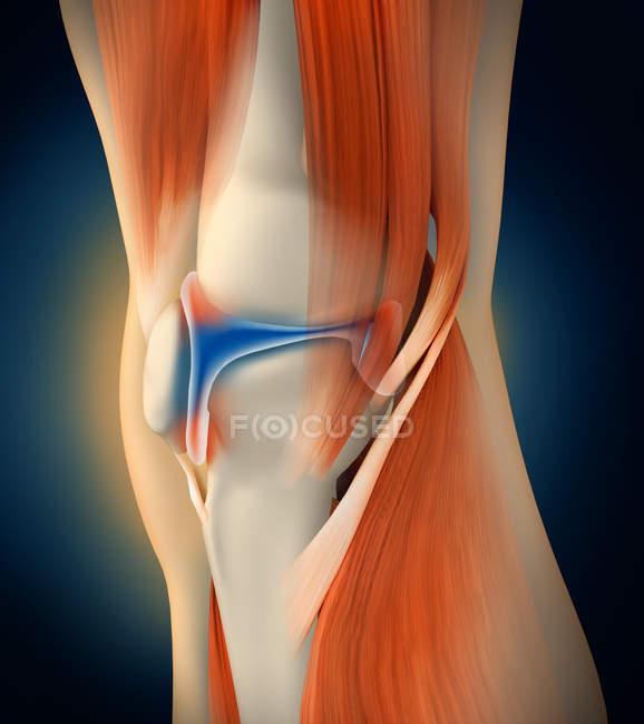 Medizinische Illustration von Entzündungen und Schmerzen im menschlichen Kniegelenk — Stockfoto