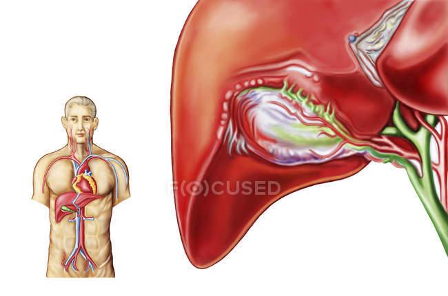 Ilustración médica de la anatomía ganglionar vesícula biliar - foto de stock