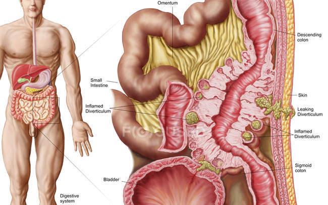Ilustração médica da diverticulose no cólon — Fotografia de Stock
