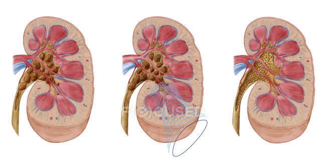 Comparação de diferentes cálculos renais de tamanho no rim humano — Fotografia de Stock