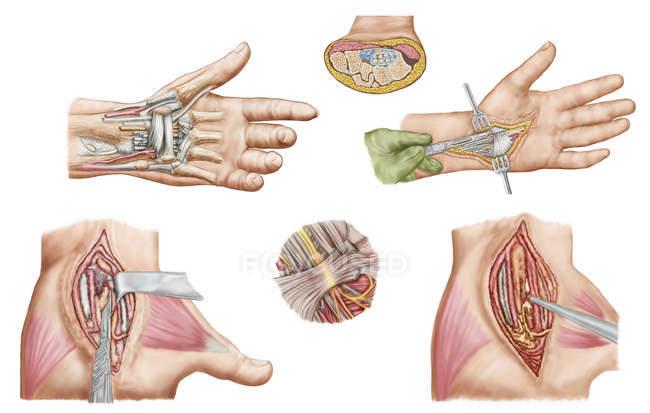 Медицинская Иллюстрация кистевого туннельного синдрома в человеческого запястья — стоковое фото