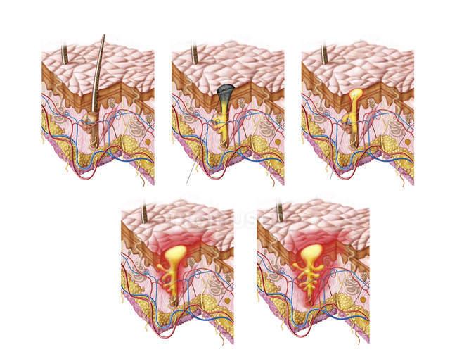 Verschiedene Arten von Akne medizinische Illustration — Stockfoto