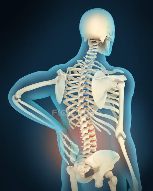 Medical illustration of inflammation and pain in human back area — Stock Photo