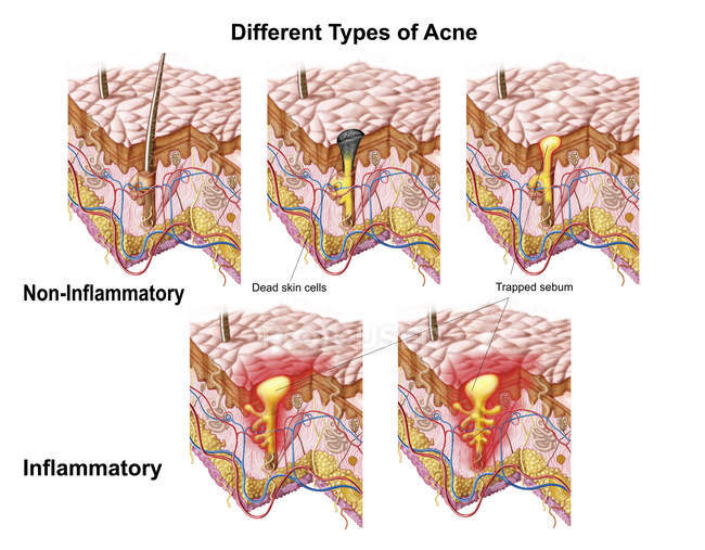 Different types of acne medical illustration — Stock Photo