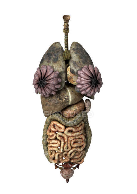3D rendering of unhealthy female internal organs — Stock Photo