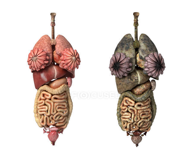 3D-Darstellung im Vergleich gesunder und ungesunder weiblicher Organe — Stockfoto